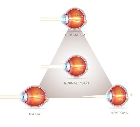 miopia: Triangolo visione degli occhi, disturbi della visione. Occhio normale, astigmatismo, ipermetropia e miopia. Vettoriali