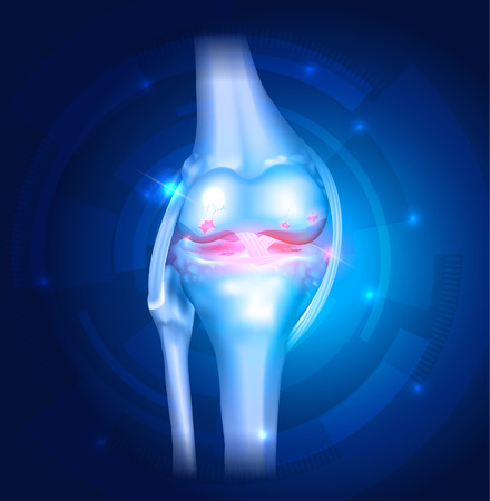 human leg: Knee Osteoarthritis abstract blue bright background with lights