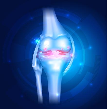 osteoarthritis: Osteoartrite del ginocchio astratto luminoso blu con luci Vettoriali
