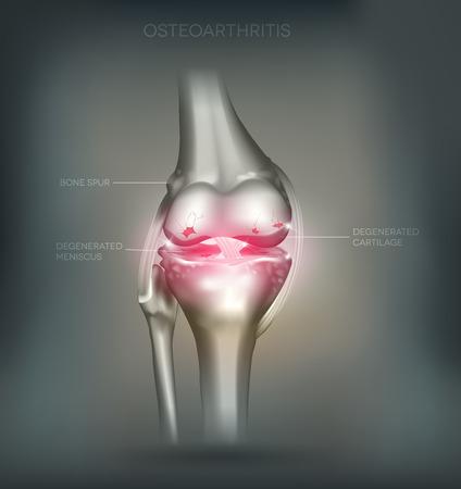 osteoarthritis: La osteoartritis de rodilla destrucci�n articular la anatom�a detallada. Malla Hermoso fondo abstracto Vectores