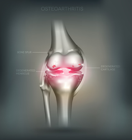 Osteoarthritis knee joint destruction detailed anatomy. Beautiful mesh abstract background