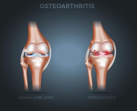 anatomie humaine: Arthrose du genou conjointe sur un fond sombre radiale Illustration
