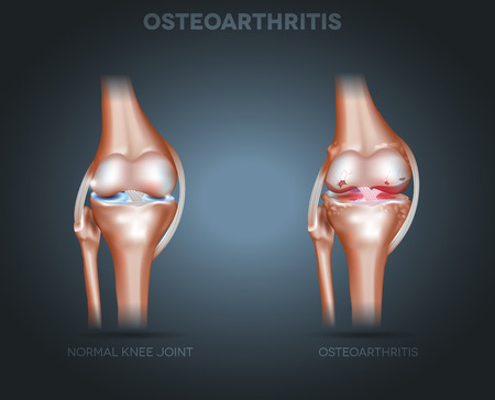 human anatomy: Knee joint Osteoarthritis on a dark radial background