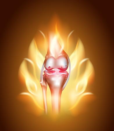 Kniegelenk Schmerzen Konzept, brennende Knie. Zerstörung von Knorpel und Meniskus.