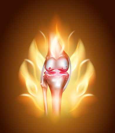 Knee joint pain concept, burning knee. Destruction of cartilage and meniscus.
