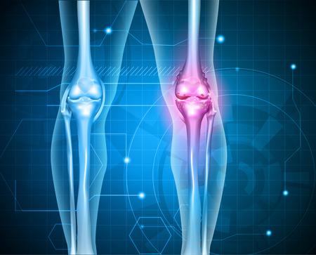 El dolor de rodilla fondo abstracto. Saludable articulación dolorosa conjunta y enfermiza con la osteoartritis. Ilustración de vector