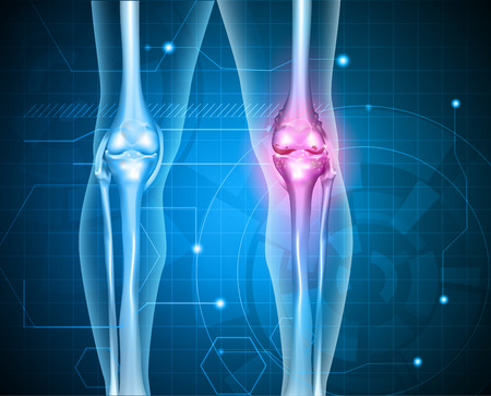 osteoarthritis: Knee pain abstract background. Healthy joint and unhealthy painful joint with osteoarthritis.