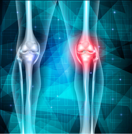 lower limb: Knee joint pain abstract blue triangle background