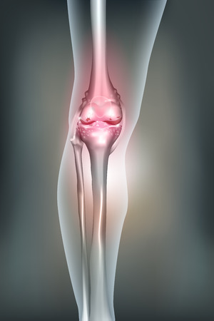 lower limb: Osteoarthritis for the knee joint detailed anatomy, beautiful abstract mesh background