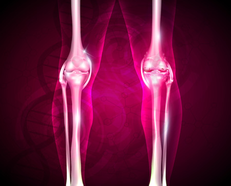 lower limb: Osteoarthritis, painful joint and healthy joint, beautiful bright background with DNA chain