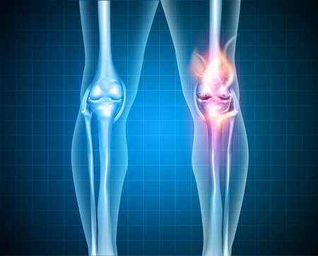 osteoarthritis: Burning knee, painful knee and normal knee joint, abstract design. Human legs on a blue checkered background.