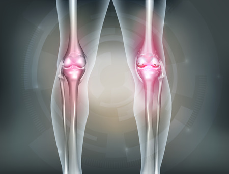 Human legs and knee joint detailed anatomy, painful joint and healthy joint. Beautiful abstract technology background