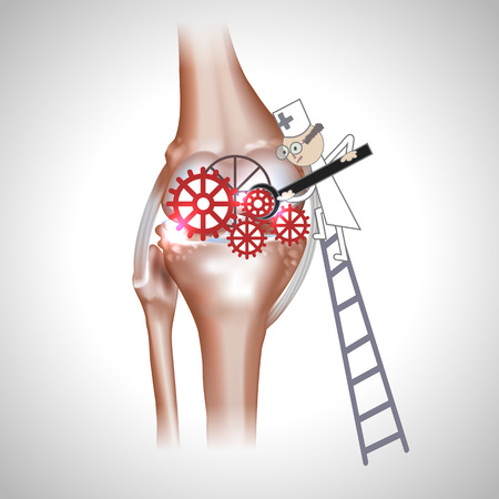 osteoarthritis: Knee joint abstract treatment procedure illustration. Doctor with screwdriver and gears in the joint