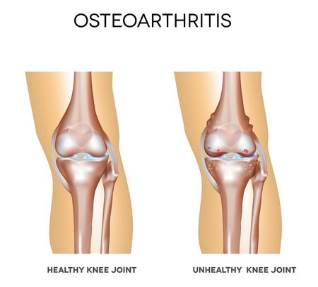osteoarthritis: Healthy knee and knee with osteoarthritis on a white background Illustration