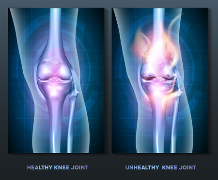Normal knee and unhealthy abstract burning knee joint Vectores