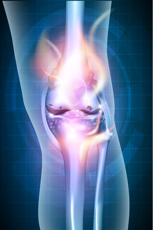 Burning leg knee joint on a abstract blue checkered background