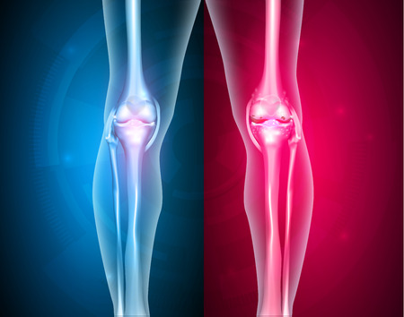 Articulación de la rodilla de la pierna normal en el fondo azul y conjunta poco saludable en el fondo rojo