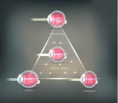 miopia: Visione degli occhi disturbi triangolo sfondo. Occhio normale, astigmatismo, ipermetropia e miopia. Vettoriali
