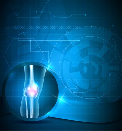 Rodilla fondo azul conjunta, la tecnología de tratamiento de juntas