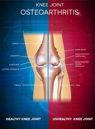 artrosis: La osteoartritis y la articulación de la rodilla sana. Parte sana de la articulación en un fondo azul y poco saludable en un rojo.