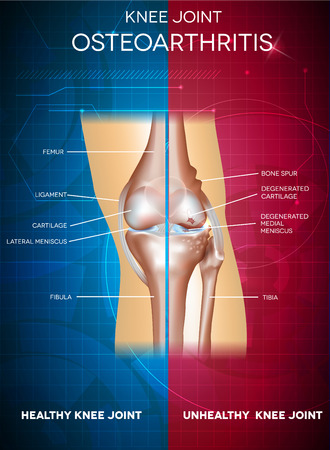 osteoarthritis: Osteoarthritis and healthy knee joint. Healthy part of the joint on a blue background and unhealthy on a red. Illustration