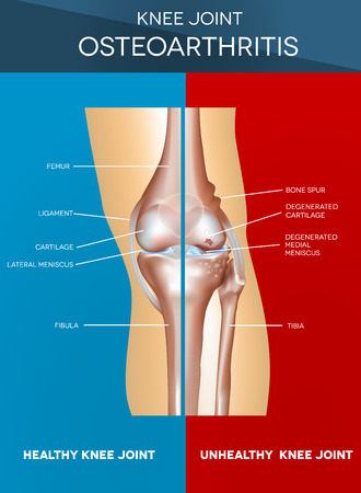 Osteoarthritis and normal knee joint colorful design, healthy half of the joint on a blue background and unhealthy on a red.