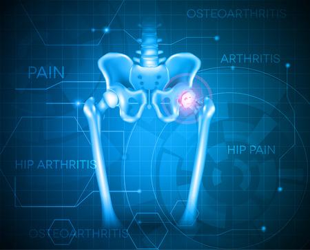 artritis: Pelvis humana de dolor de cadera, fondo abstracto azul. La artritis de cadera