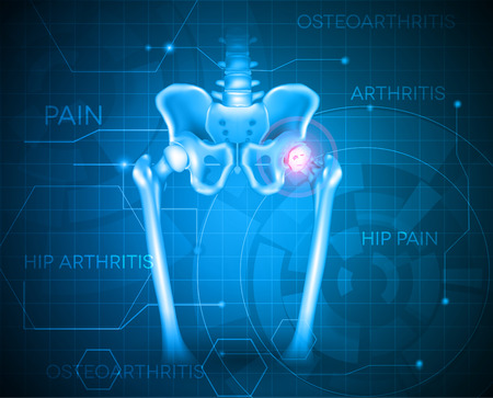 Human pelvis hip pain, abstract blue background. Hip arthritis