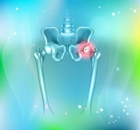 Bassin humain de la douleur de la hanche, fond bleu abstrait. Arthrite de la hanche