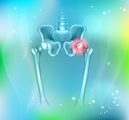 Miednicy człowieka ból biodra, abstrakcyjna niebieskie tło. Hip zapalenie stawów