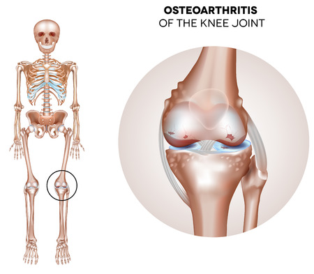 Arthritis of the knee joint, damaged joint cartilage and osteophytes.