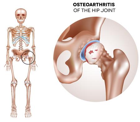 Hip artritis, beschadigd gewrichtskraakbeen en osteofyten. Stock Illustratie