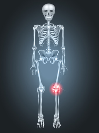 break joints: Human Skeleton with knee joint pain on a dark radial background.