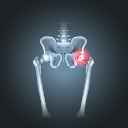 bones: Human pelvis hip pain on a dark radial background
