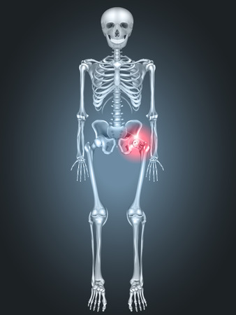 break joints: Human skeleton with hip pain on a dark radial background. Hip arthritis Illustration