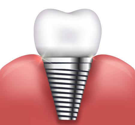歯科インプラントの美しい明るいイラスト
