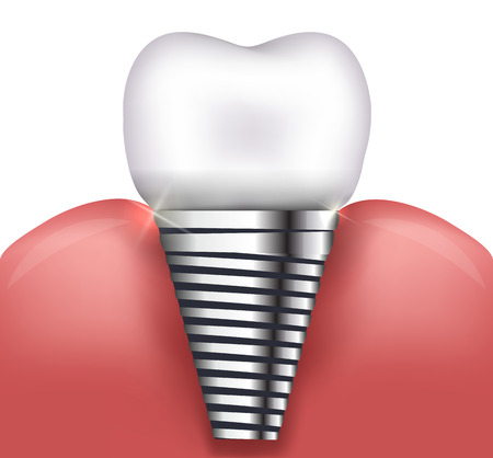 dental health: Dental implant beautiful bright illustration