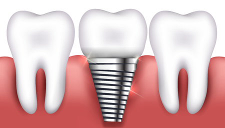 Dental implant and normal tooth beautiful bright illustration