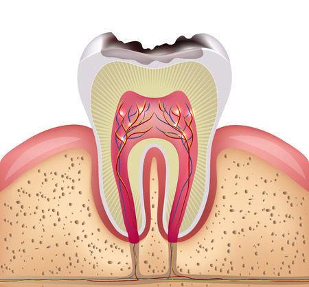 Tooth cross section with dental caries, detailed illustration Vettoriali