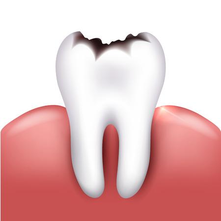 dientes sanos: Diente con caries, caries dental. Fondo blanco