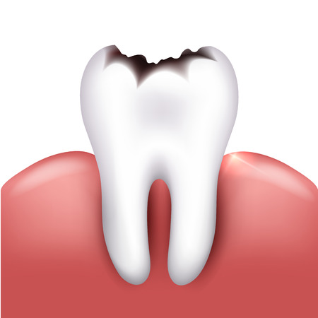 white teeth: Tooth with caries, tooth decay. White background Illustration