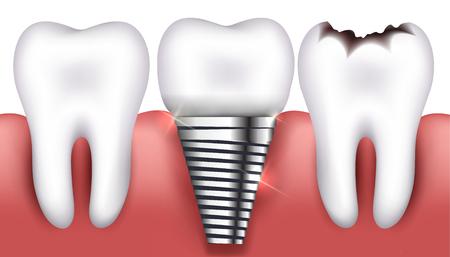 tornillos: Diente sano, toorh con caries y de implantes dentales, hermosa ilustración brillante.