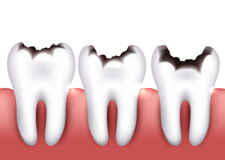 tooth decay: Dental caries, tooth decay, health problem. Illustration