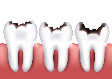 La carie dentaire, la carie dentaire, problème de santé. Banque d'images - 46560596