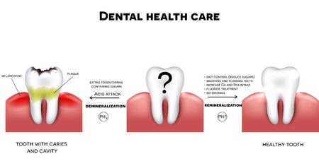 caries dental: Cuidado de la salud dental, consejos de cómo mantener los dientes sanos, dieta sin azúcares, cepillado, tratamiento de fluoruro, etc. Y diente con caries fracaso para cumplir con la higiene
