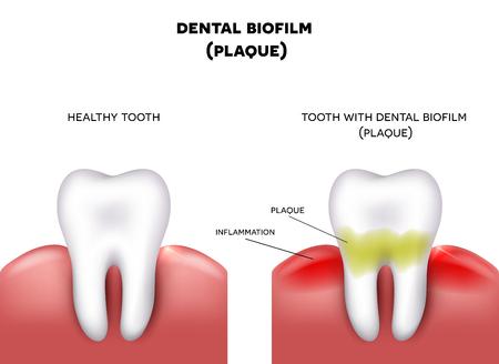 placa bacteriana: La placa dental con la inflamación y diente sano en un fondo blanco