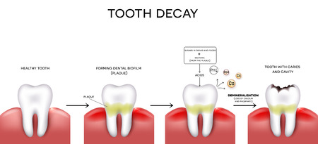 Tooth decay formation step by step, healthy tooth, forming dental plaque and finally caries and cavity Stock Illustratie