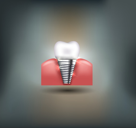 dental caries: Dental implant beautiful bright illustration