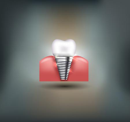 tratamientos corporales: Implante dental hermosa ilustración brillante