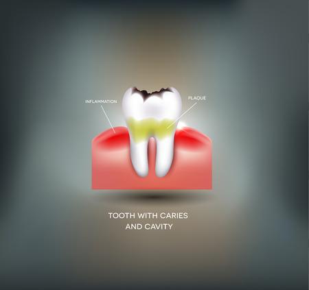 caries dental: Caries y cavidades dentales, la placa dental con la inflamación. Fondo del acoplamiento abstracto hermoso